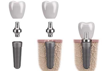 Dental implants promo in Orleans